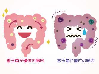 善玉菌が優位な状態の腸と悪玉菌が優位な状態の腸、イラスト