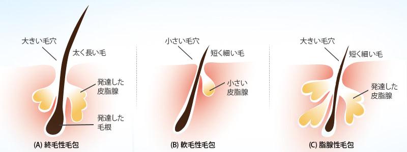 (A) 終毛性毛包:大きい毛穴、太く長い毛、発達した皮脂腺、発達した毛根。(B) 軟毛性毛包:小さい毛穴、短く細い毛、小さい皮脂腺。(C) 脂腺性毛包:大きい毛穴、短く細い毛、発達した皮脂腺
