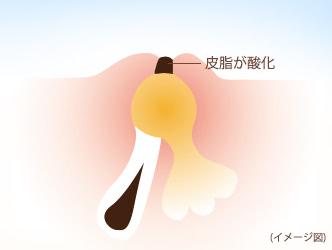 黒ニキビ(開放面皰(かいほうめんぽう))