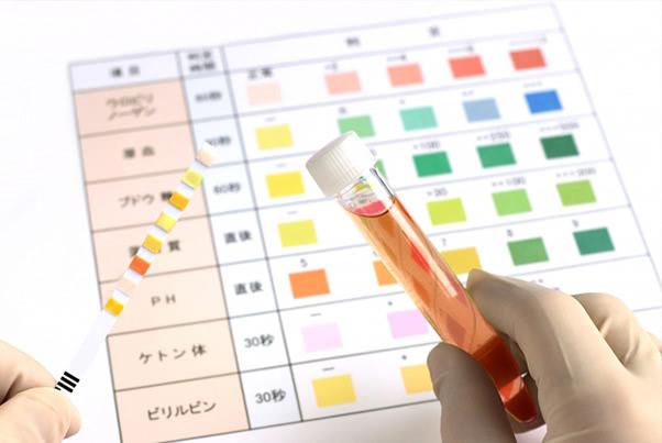 女性の血尿、考えられる病気と正しい対処法が知りたい!
