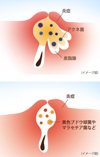 吹き出物ができる仕組みの図:【ニキビ】炎症 アクネ菌 皮脂腺, 【毛包炎】炎症 黄色ブドウ球菌やマラセチア菌など