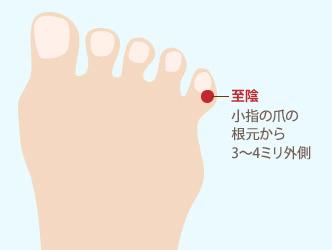 【至陰】小指の爪の根元から3~4ミリ外側