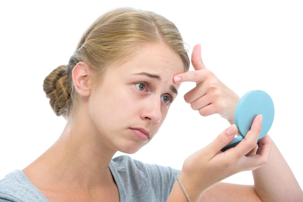 思春期ニキビの治し方が知りたい! 即効&簡単なケア方法は?