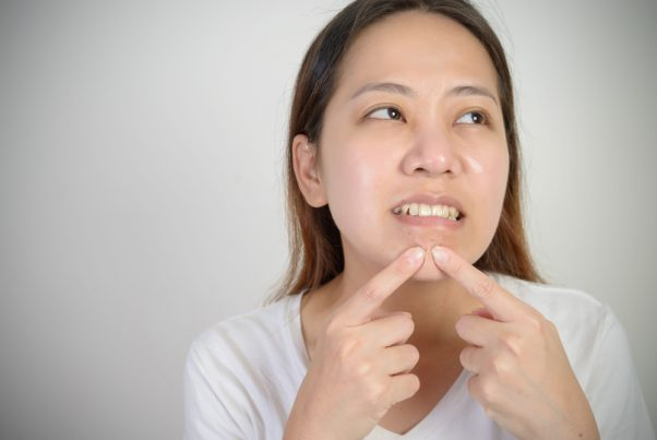 顎まわりニキビの原因は? 顎下にできやすいのはなぜ?