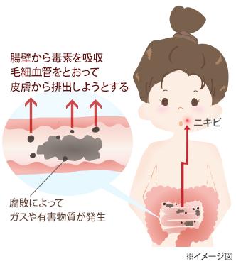 便秘がニキビを引き起こすメカニズムの図:腸壁から毒素を吸収毛細血管をとおって皮膚から排出しようとする、腐敗によってガスや有害物質が発生